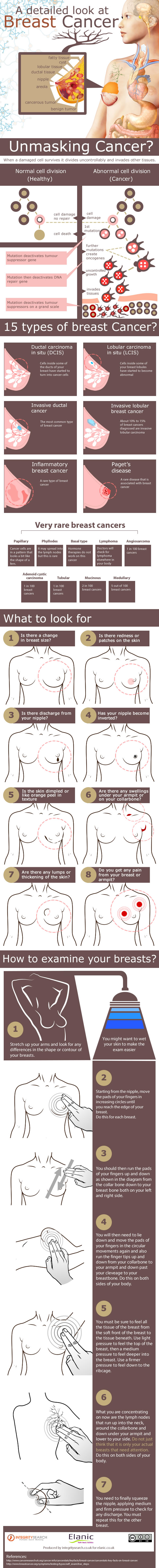 A Detailed Look at Breast Cancer
