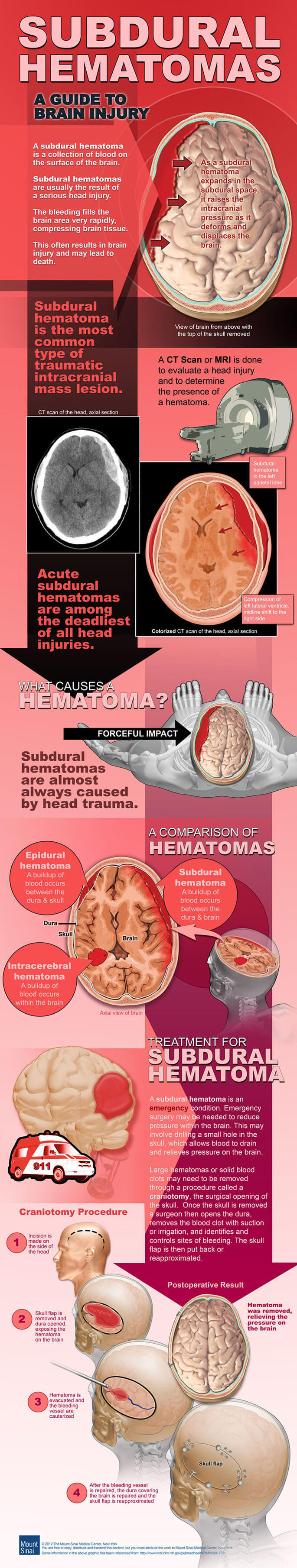 A Guide to Brain Injury and Subdural Hematoma