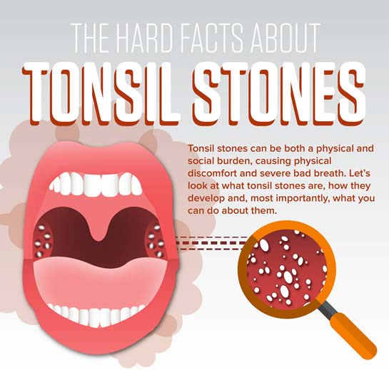 The Hard Facts About Tonsil Stones [Infographic]