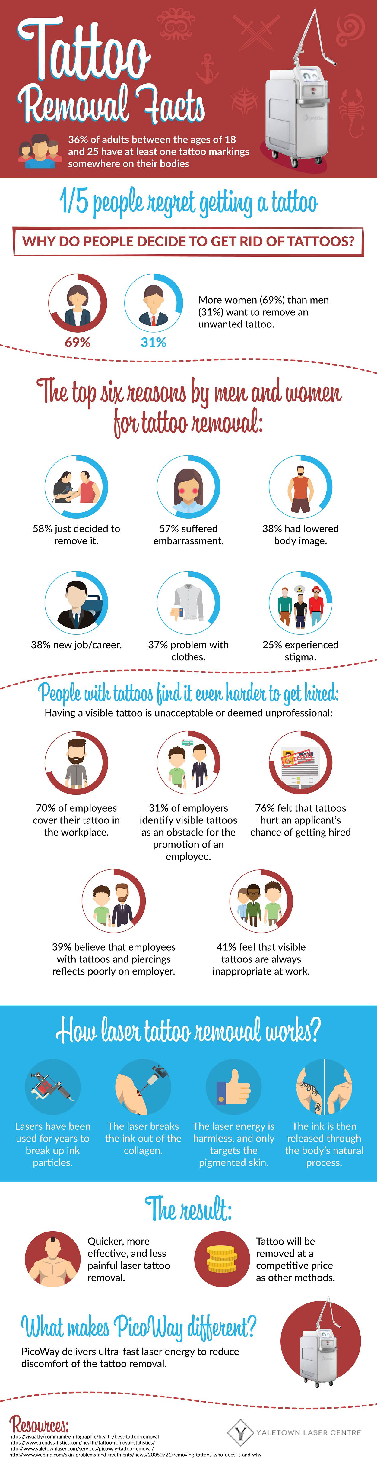 Interesting Facts About Laser Tattoo Removal