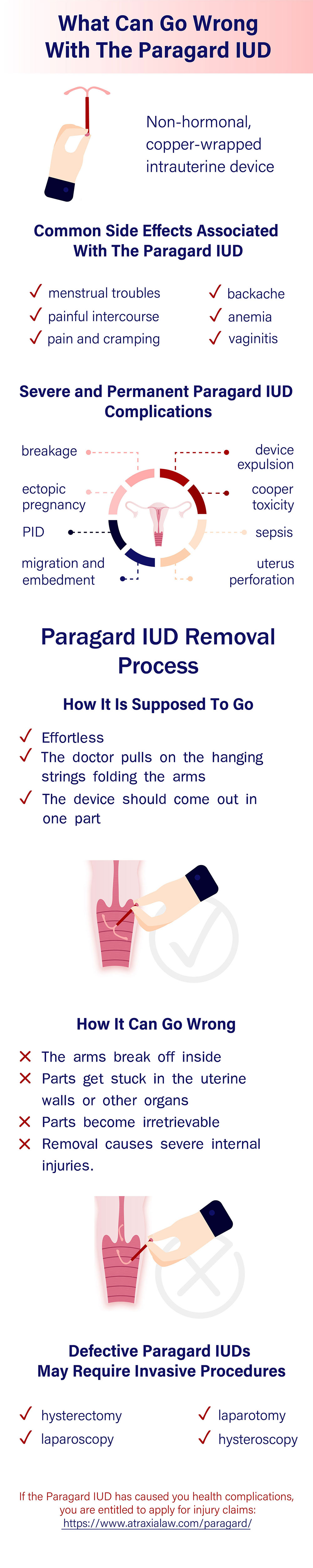 What Can Go Wrong With a Paragard IUD?